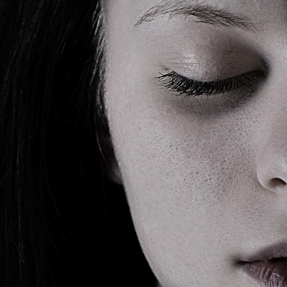 acne (pixabay)